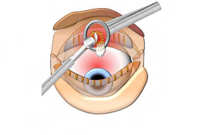Проведение операции по удалению халязиона