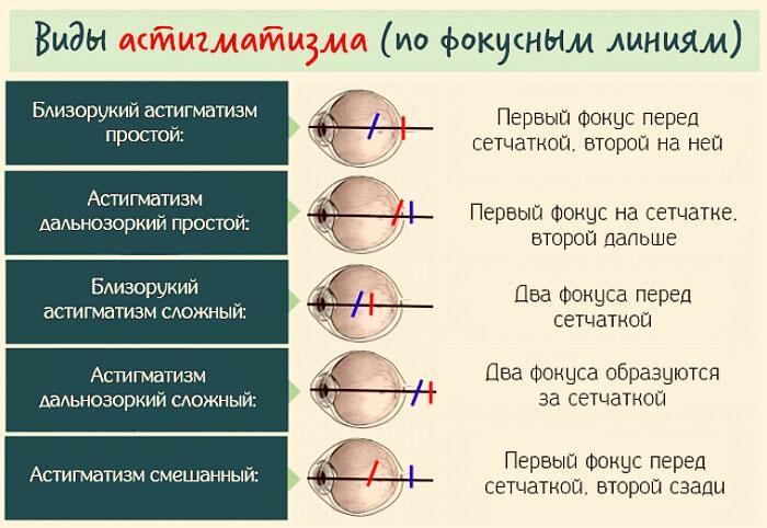 Виды астигматизма