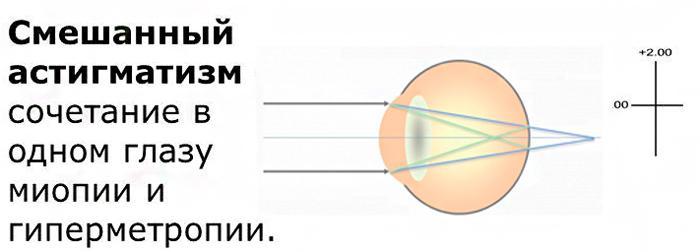 Что такое смешанный астигматизм