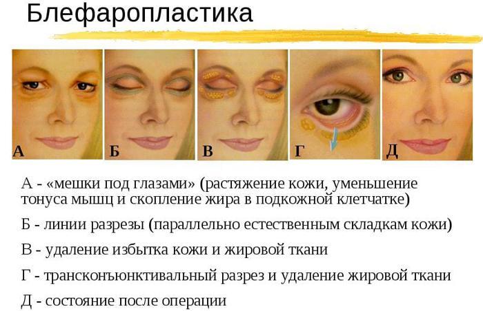 Блефаропластика от мешков под глазами
