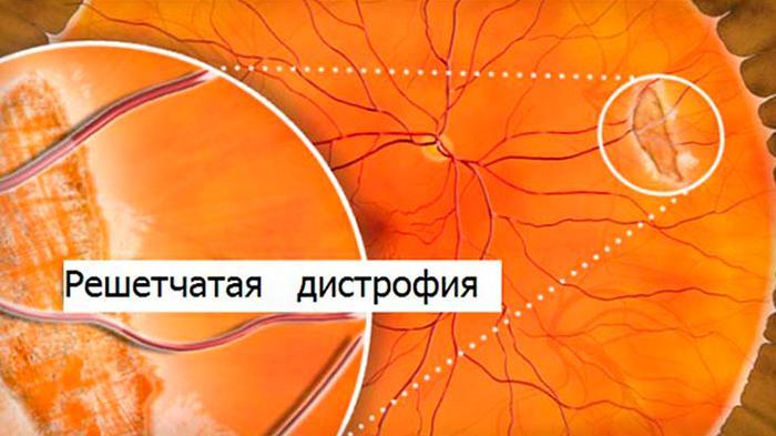Решетчатая дистрофия сетчатки