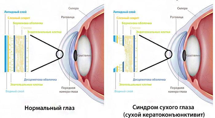 Сухой кератоконъюктивит