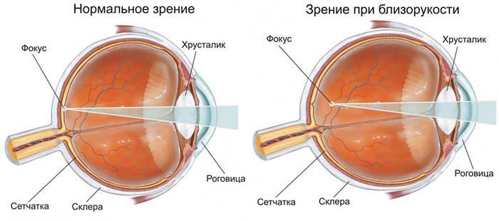 Симптомы миопии (близорукости)