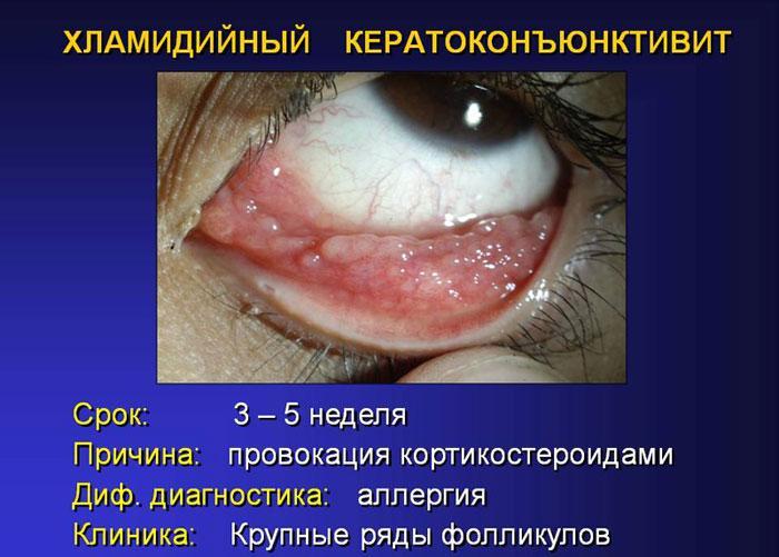 Симптомы хламидийного кератоконъюктивита