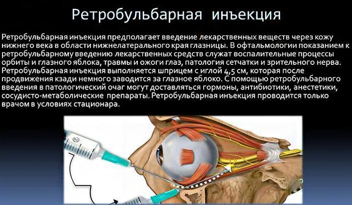 Как проводится ретробульбарная инъекция