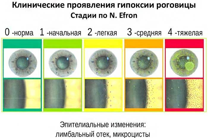 Стадии гипоксии роговицы