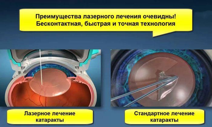 Операции при катаракте