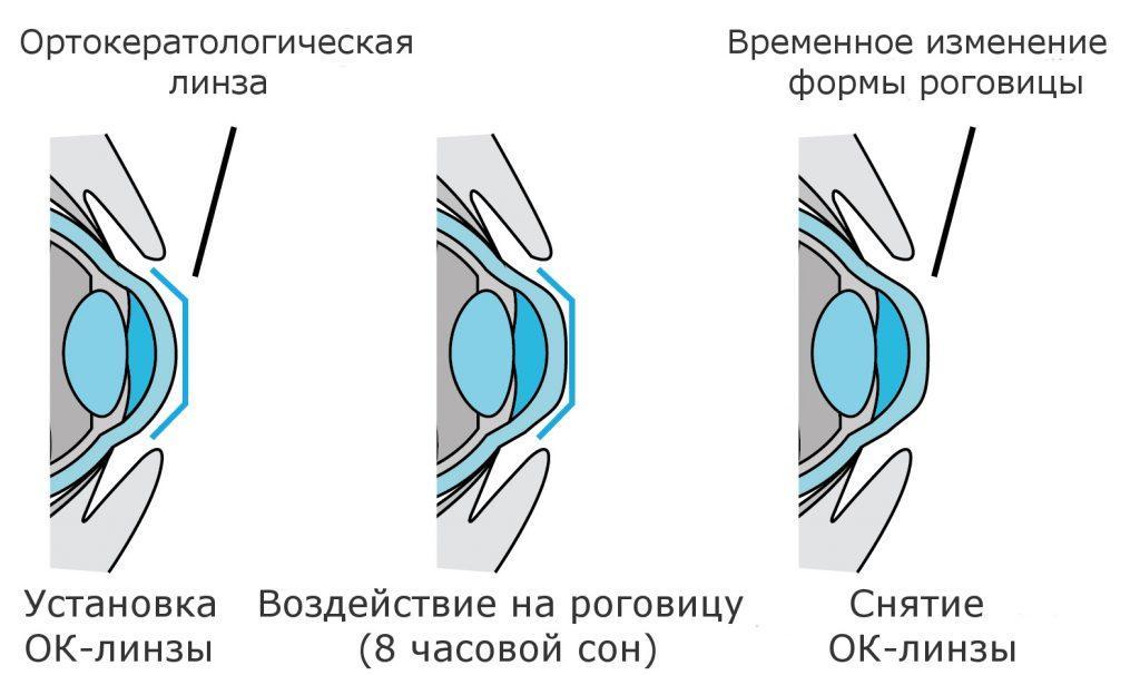 nochnye-kontaktnye-linzy-dlya-teh-kto-ne-nosit-ochki-no-boitsya-pri-etom-korrekcii-2
