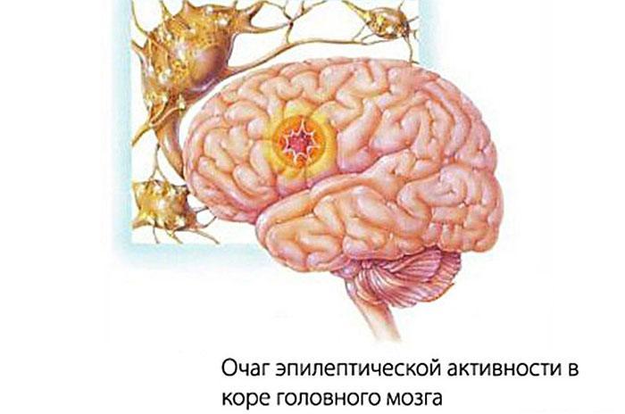 Очаг эпилептической активности мозга