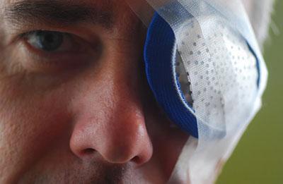 Замена хрусталика глаза при катаракте: проведение операции