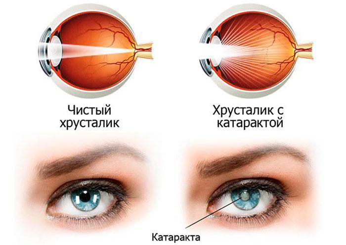 Хрусталик с катарактой