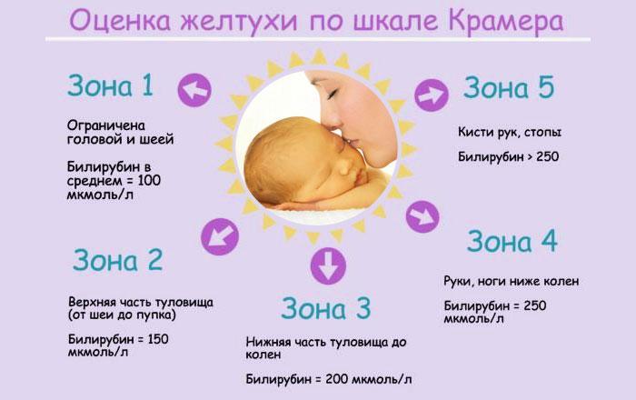 Степени желтухи у новорожденных